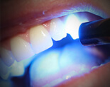 Laser teeth whitening